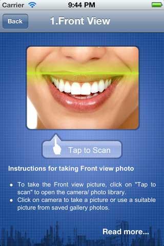 تطبيق ماسح ضوئي للأسنان