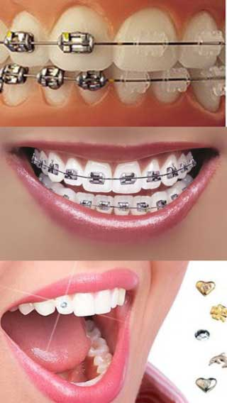 تطبيق Orthodontic تقويم الاسنان: نصائح وإرشادات