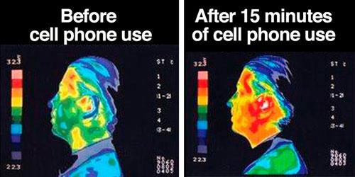تأثير الموجات الكهرومغناطيسية على درجة حرارة الرأس - الصورة على اليمين تؤكد زيادة الحرارة بعد 15 دقيقة استخدام للهاتف