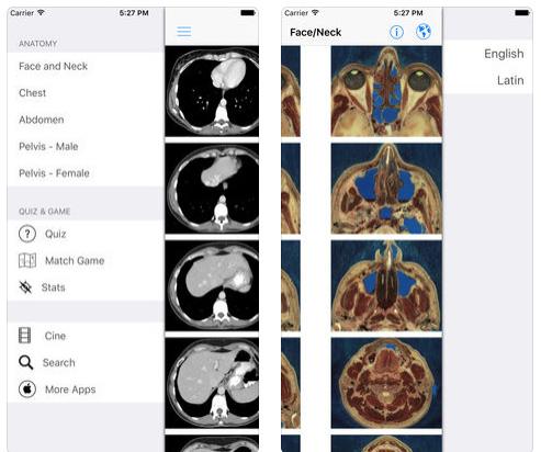 تطبيق iAnatomy - تشريح جسم الإنسان