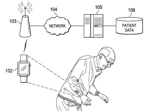 ساعة ابل: براءة اختراع جديدة للمساعدة في علاج الأمراض العصبية!