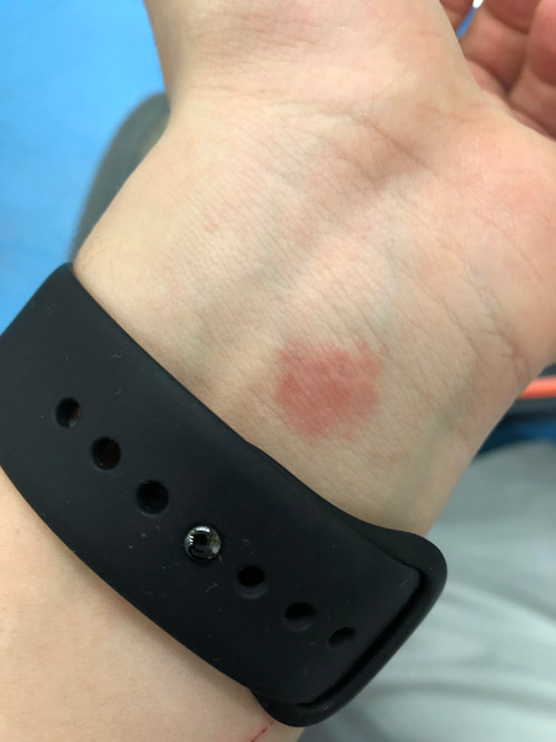 كيف نتفادى حدوث حساسية و التهابات في الجلد مع ساعة ابل؟